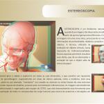esterioscopia