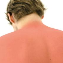 Doenças do Verão