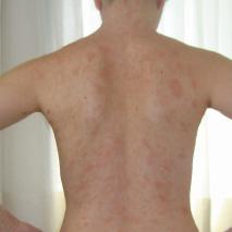 Alergias e Intolerâncias